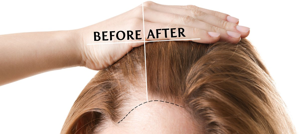 FUE Hair Transplantation in Women