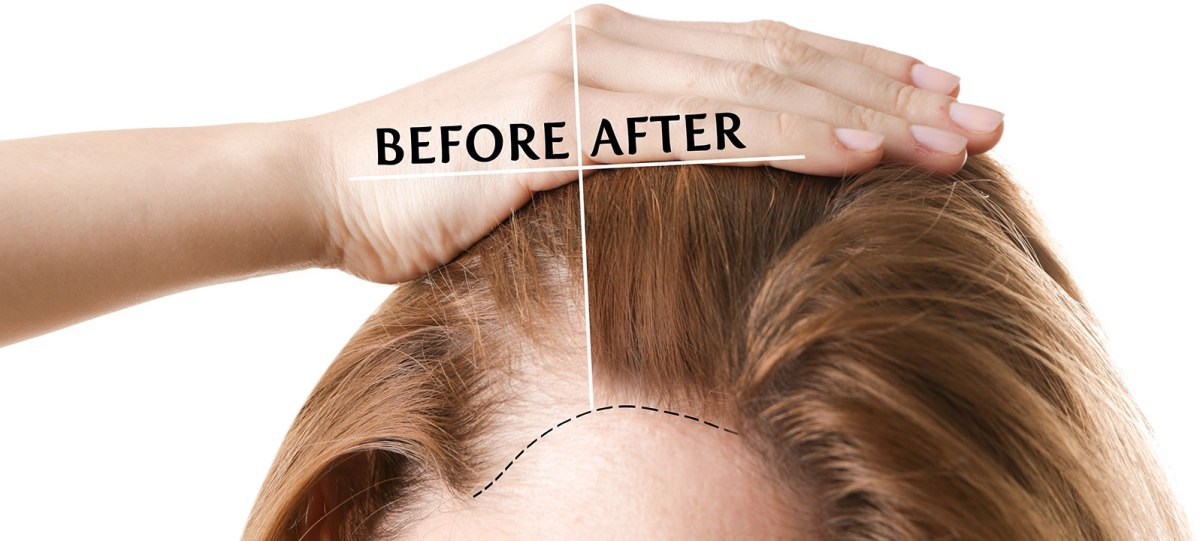 FUE Hair Transplantation in Women