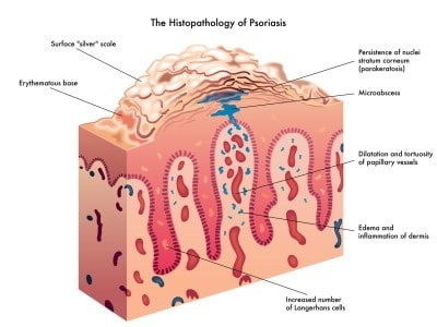 Image result for psoriasis