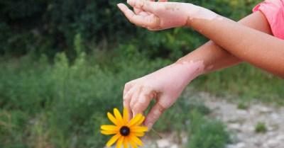 tv catia fonseca Vitiligo: O que é e como tratar Tratamento de vitiligo