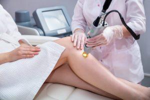 Depilação a laser: é benéfica ou prejudicial por Dra. Maria Paula del Nero