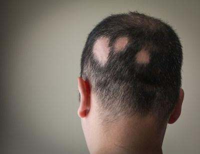 Tv Catia Fonseca Novo tratamento para alopecia areata