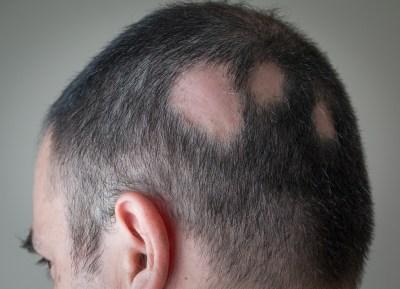 Tv Catia Fonseca Novo tratamento para alopecia areata imagem 2
