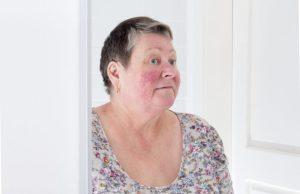 Rosácea: As famosas bochechas vermelhas por Dra. Maria Paula del Nero