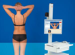 Mapeamento digital corporal total: procedimento realiza diagnóstico preciso de pintas na pele