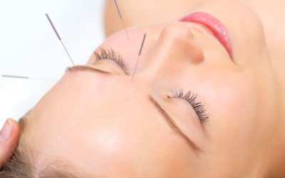 Cosmetic acupuncture in Kingscliff