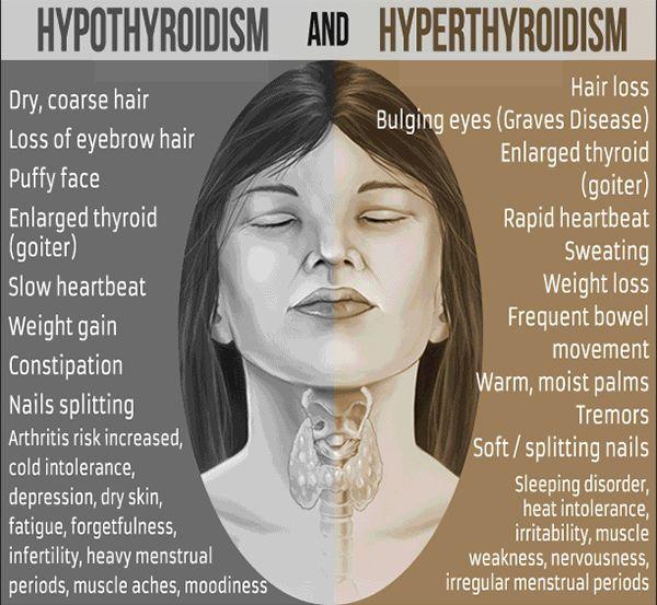 Unmasking Your Thyroid: Raising Thyroid Disorder Awareness