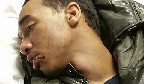 Marcus Abrams, 17, shows a cut lip and swollen jaw after what his family says was unjustifiably rough treatment by Metro Transit police Monday, Aug. 31, 2015, at Lexington Parkway Station in St. Paul. (Courtesy Neenah Caldwell)