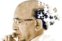 Aducanumab - Reduces plaques in Alzheimer's disease
