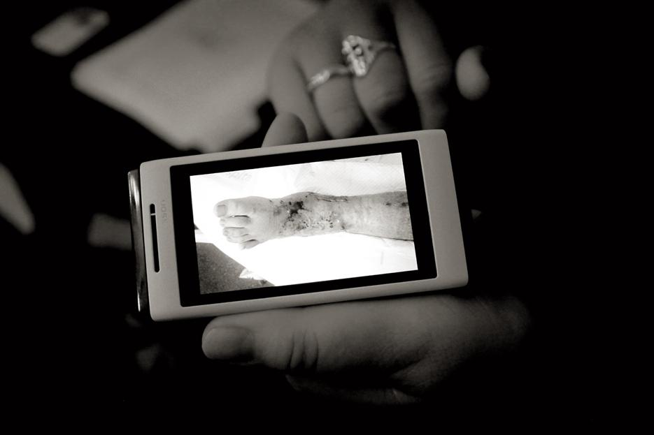 Mari Trini me muestra en su teléfono móvil las fotos que toma de cada cura de las heridas de su hijo, para documentar su evolución y que pueda ver qué se oculta tras las vendas.