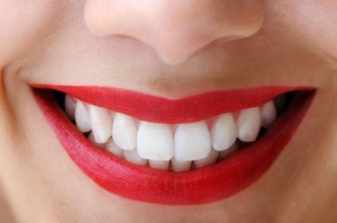 dents-500x331