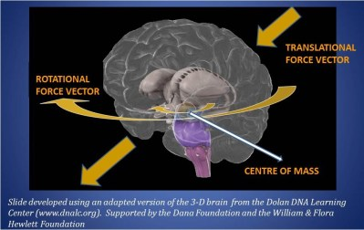 Inertial Forces in TBI