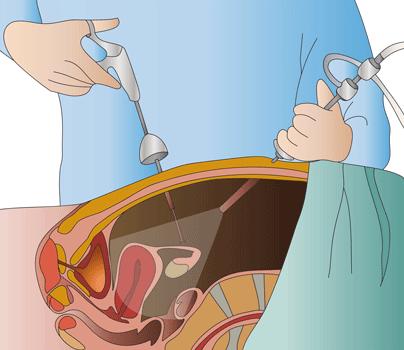 ¿Qué es la cirugía laparoscópica?