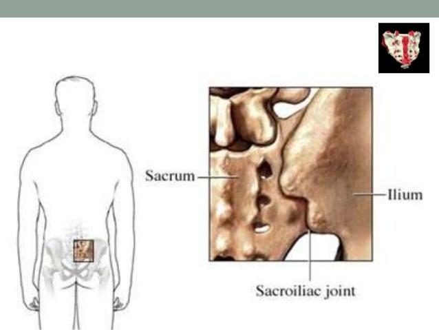 Factores de riesgo para la sacroileítis