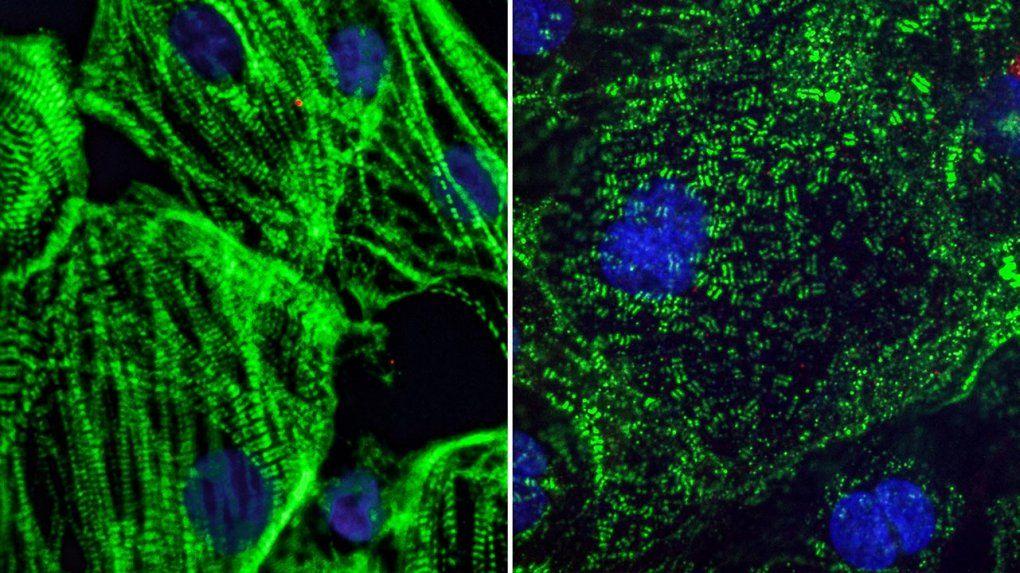 Two images of heart muscle cell: Healthy heart muscle (left) created from adult stem cells have long fibers which allow them to contract. SARS-CoV-2 infection causes these fibers to break apart into small pieces (right), which can cut off the cells ability to beat and may explain lasting cardiac defects in COVID-19 patients.