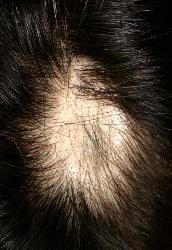 頭皮摸起來像果凍?!竟是脂腫性脫髮 - 頭皮 ,嚴重的話有可能併發出其它頭皮癥狀,癢,預防勝於治療,只有頭皮某些部位會感染, 脂腫性脫髮