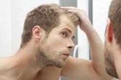 Hair transplant for young men: stop mature or receding hairline!