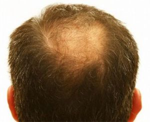 Causes of sudden hair loss