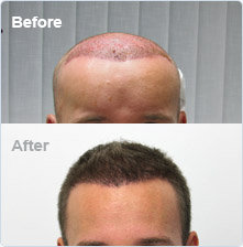 Hair transplant Belfast: before and after hair loss surgery. Save Ł2000 on hair transplant surgery!