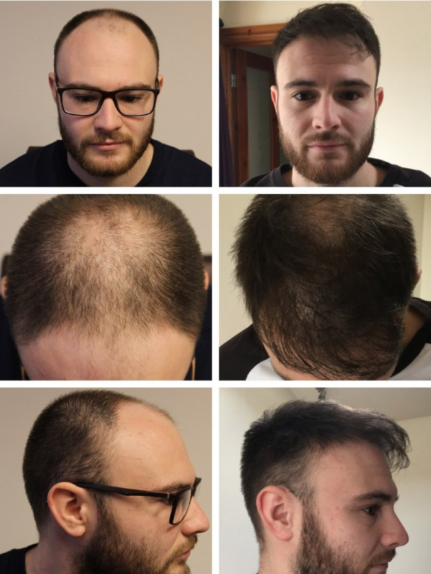 Hair transplant before after images