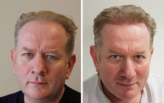 General hair transplant to improve look - volume, density increase