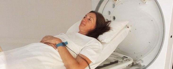 Beneficios tratamiento cámara hiperbárica clínica Ulcemed Madrid