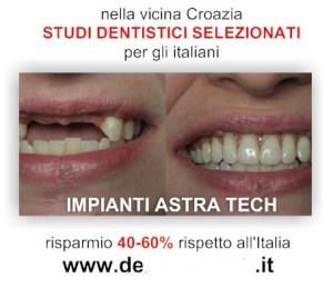 denti1bis
