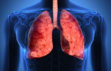 """Nuova tecnica per combattere il cancro al polmone. Si  aggirano i """"trucchi"""" delle cellule tumorali"""