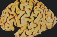 Alzheimer: smarriti tra la gente
