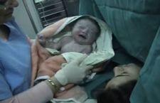 Il parto cesareo influisce sull'evoluzione umana