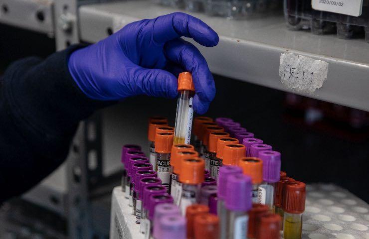 Test laboratorio Covid