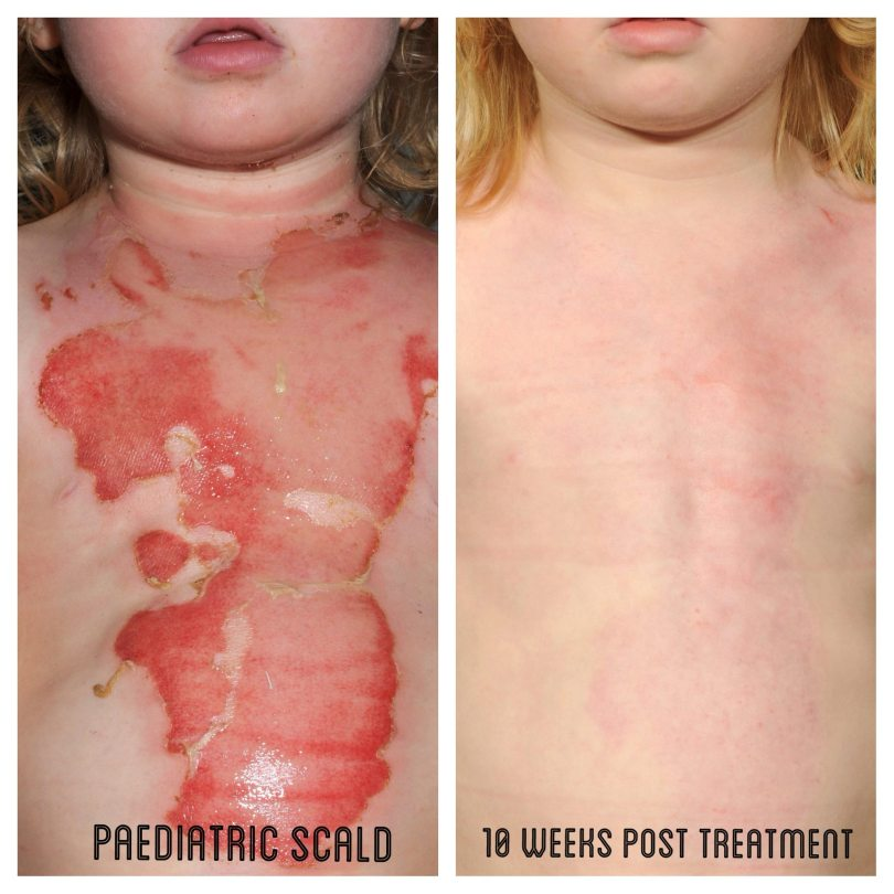 Recell Treatment - Child Burns