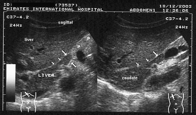 Riedels Lobe Ultrasound