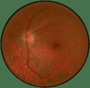 Fondo del ojo