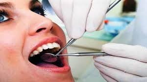 puliia dei denti