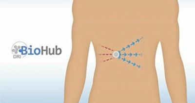 Diabete: a Miami il primo trapianto dello studio pilota 'Biohub'