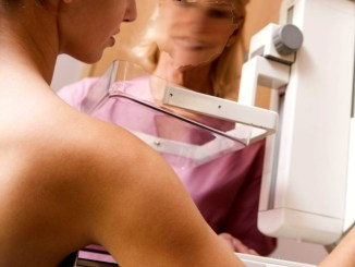Liste d'attesa 22 mesi una mammografia a Perugia, Squarta, FdI, servizio ancora non funziona