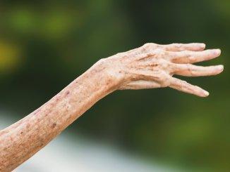 Asl Umbria 2 chiede 11mila 612 euro a un anziano malato cronico