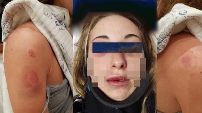 Pesta a sangue la compagna lei mette le foto su FB e lo denuncia
