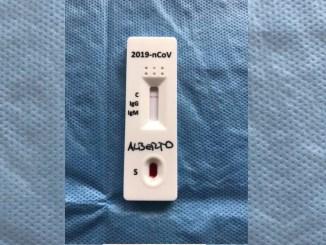 Coronavirus, sospeso l'avvio dei test rapidi dopo ispezioni di Nas e Asl