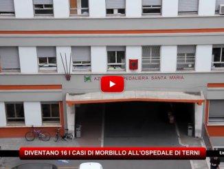 Ospedale Terni, salito a 16 il bilancio dei casi di morbillo