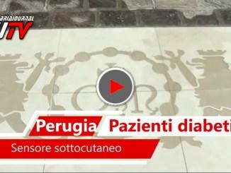 Ospedale Perugia, sensore sottocute per giovani pazienti diabetici