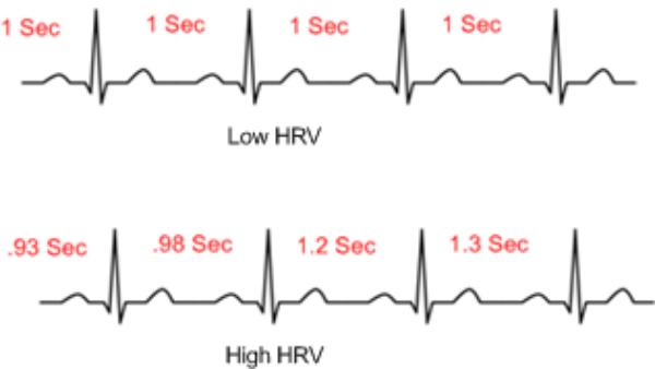 ECG HRV