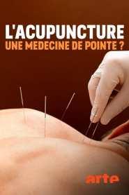 Spitzenmedizin: Akupunktur – Mythos oder Therapie?