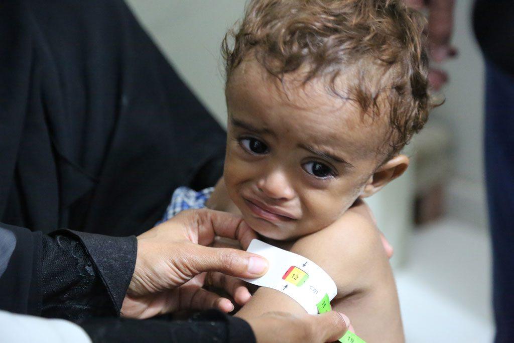 Niño recibiendo tratamiento para la desnutrición aguda en un hospital de Hajjah, en Yemen. Foto: PMA/Abeer Etefa.