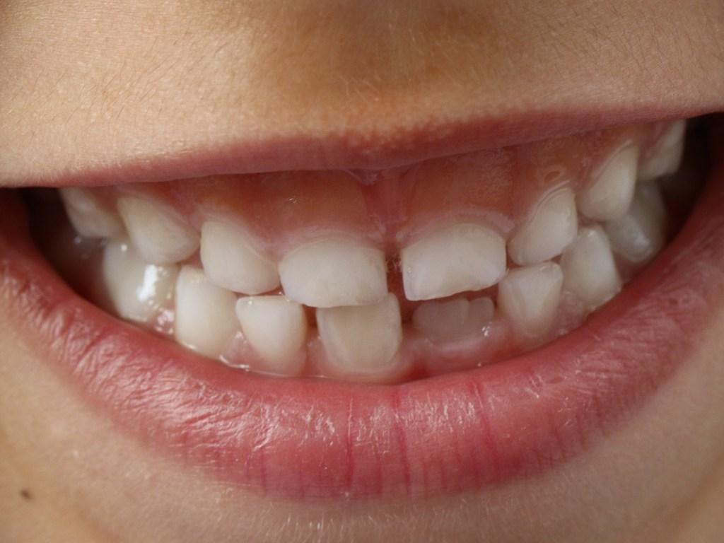 Celiachia: nei bambini, si può scoprire anche dalla bocca
