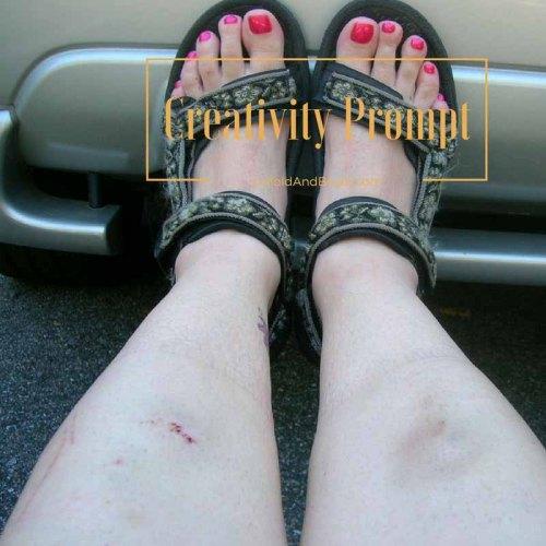 How did my legs get banged up on UnfoldAndBegin.com