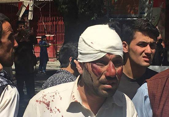 Four BBC Journalists Among Victims In Devastating Suicide Bomb Blast In Kabul 18817048 10154467703026196 1893896249 n