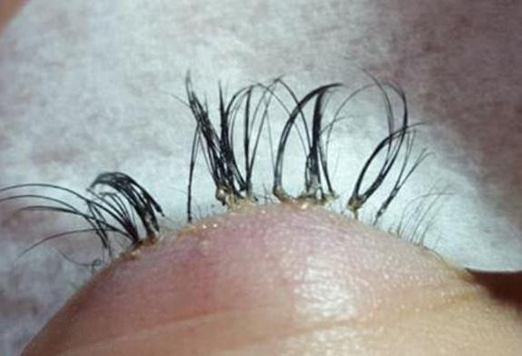 Womans Eyelashes Fall Out After Botched Extension Job EYE 1