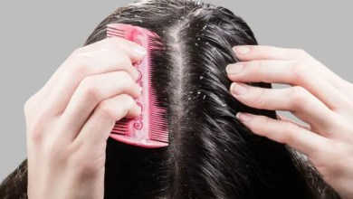 How to Get Rid of Chronic Dandruff